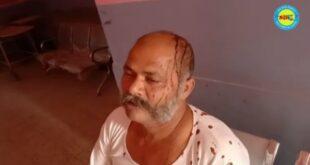 जौनपुर। जमीनी विवाद को लेकर मंगलवार की सुबह मारपीट 12 लोग घायल, तीन रेफर